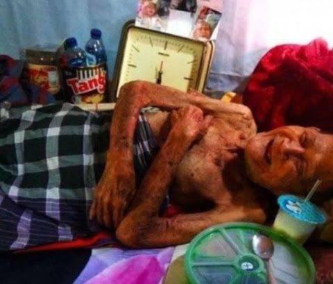 Ditelantarkan Oleh 4 Anaknya, Kakek Ngawi 98 Tahun ini Sudah 9 Bulan Tidak Mandi