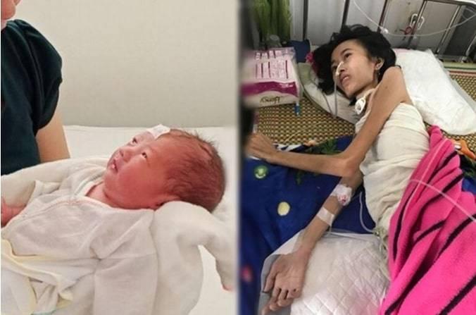 """""""Saya Tidak Takut Mati, Saya Hanya Ingin Melihat Bayi Saya"""", Ibu Muda dengan Berat 19 Kg Ini Berhasil Lahirkan Bayinya dengan Berat 1,8 Kg, Ajaib!"""